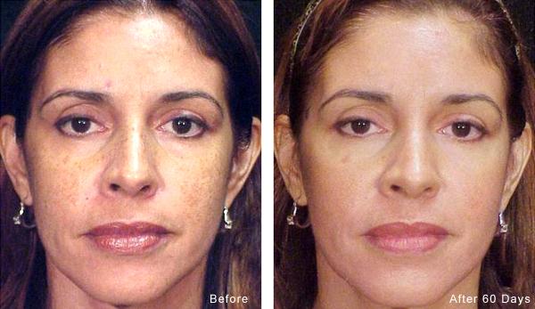 Cosmelan Depigmentation Treatment