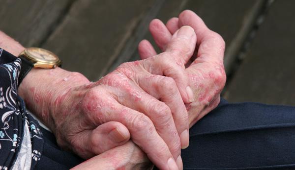 Eczema / Dermatitis