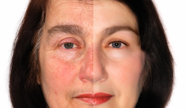 Skin & Facial Redness (Rosacea)